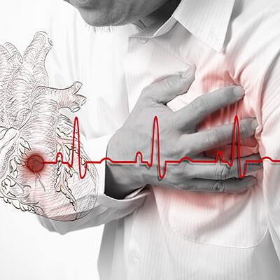 Herzinfarkt Herz-Kreislauf-System