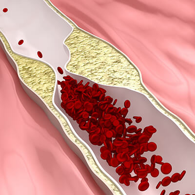 Koronare Herzkrankheit Herz-Kreislauf-System