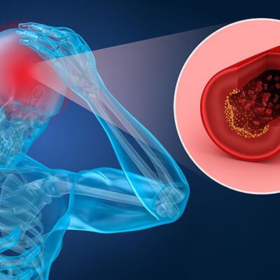Schlaganfall Herz-Kreislauf-System
