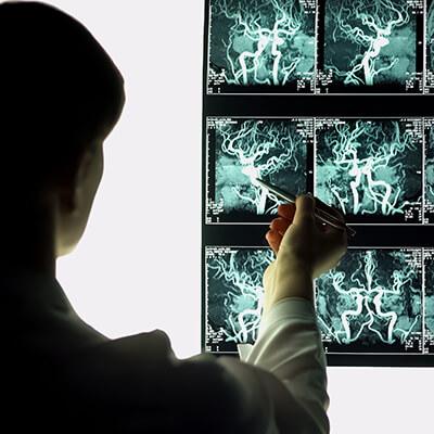Vorerkrankungen behandeln Herz-Kreislaufsystem
